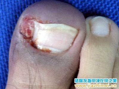 脚拇指甲沟炎出血流脓