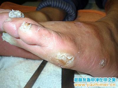 厚脚垫 脚底起老茧子胼胝