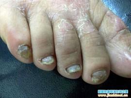 灰指甲手足癣合并患者