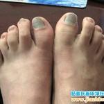 踢球后脚趾甲甲床瘀血图片