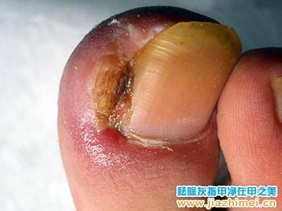 外伤引发的甲沟炎