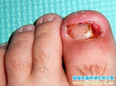 脚趾甲往肉里长 甲沟炎