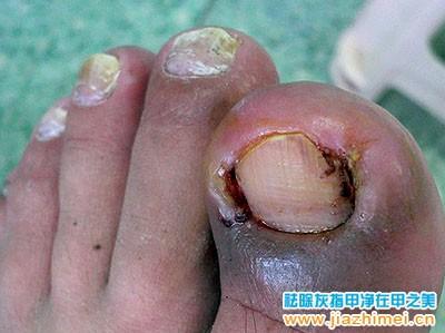 甲沟炎 灰指甲患者图片