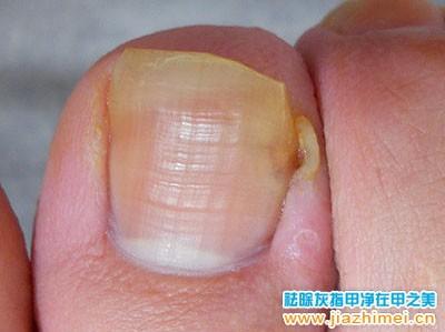 治疗中的甲沟炎患者图片