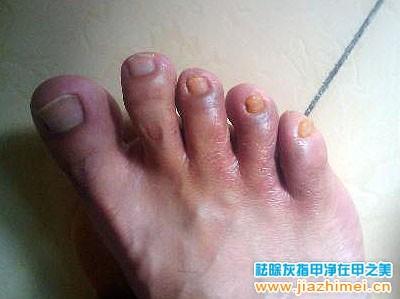 慢性甲沟炎症状图片