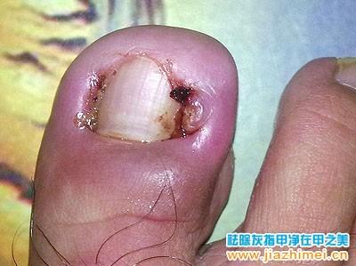 化脓性甲沟炎症状图片
