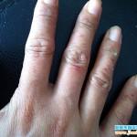 顽固型手癣患者图片