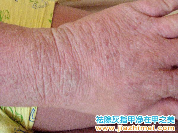 病症图片 甲之美灰指甲加盟店 岳阳市甲之美生物科技有限公司官方网站