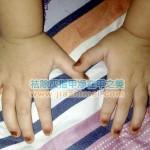 儿童灰指甲02
